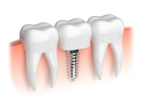 Dental Implants Vs. Fixed Bridge