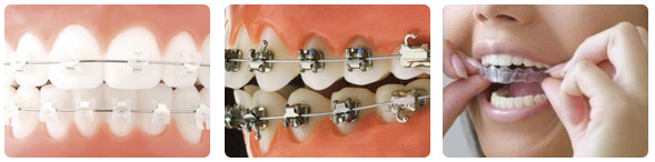Different Styles of Braces
