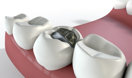 Fillings and Other Dental Repairs